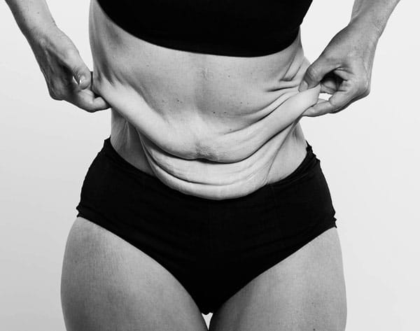 burta exces de piele abdominoplastie, chirurgie post bariatrica Dr Juravle