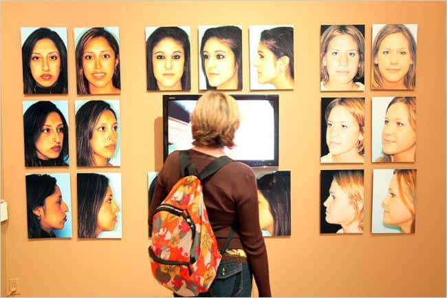 Estetica nasului expozitie, forme si marimi diferite de nas