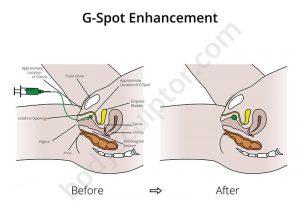 Augmentarea punctului G