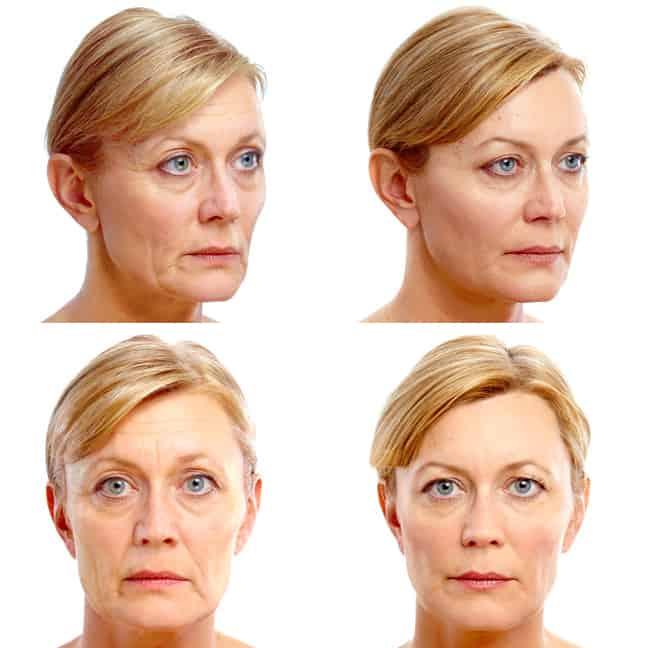 Femeie inaiante si dupa lifting facial chirurgical