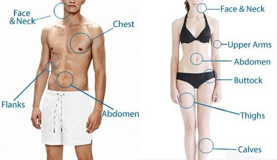 Zonele pe care se poate face lipoaspiratie - Dr Juravle