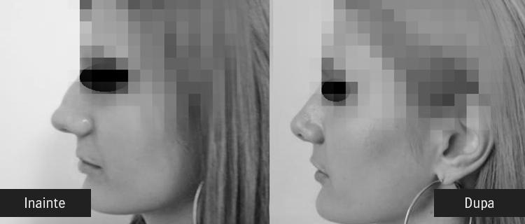 inainte si dupa operatia de micsorare a nasului