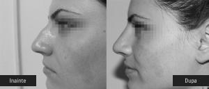 Femeie inainte dupa operatia la nas/ rinoplastie - Dr. Juravle