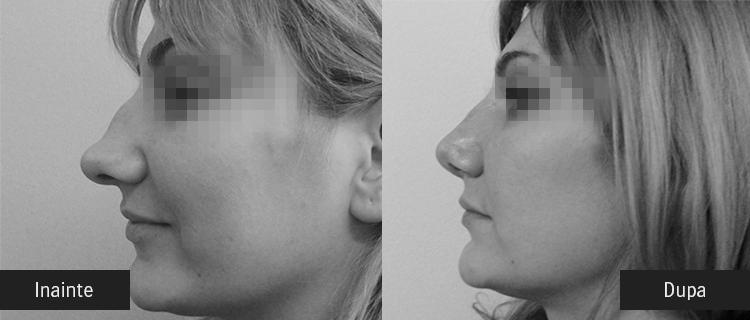 inainte si dupa operatie estetica la nas