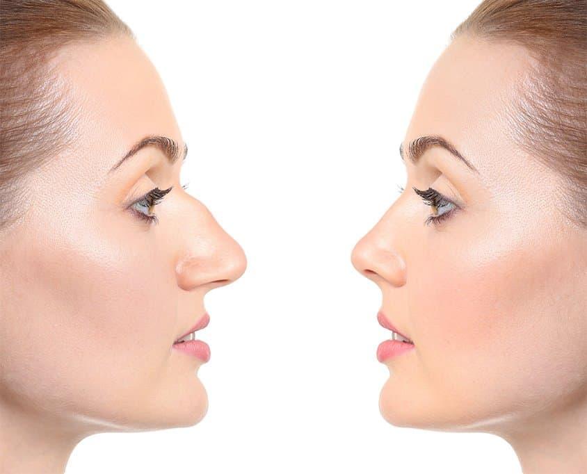 rinoplastie profil de femeie inainte si dupa operatia estetica a nasului