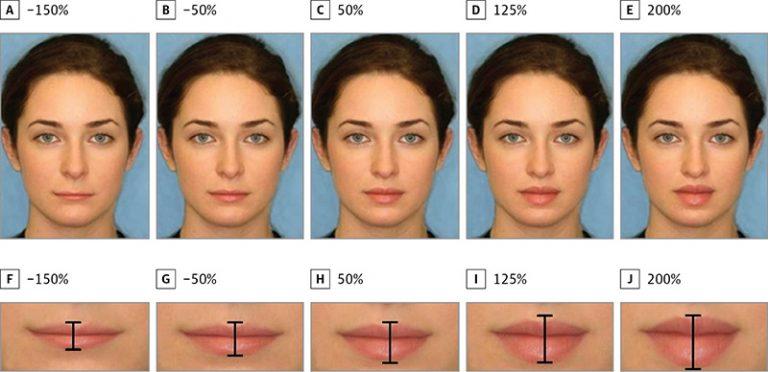 Mărirea buzelor cu acid hialuronic