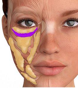 Tratament Cearcăne cu Acid Hialuronic 1