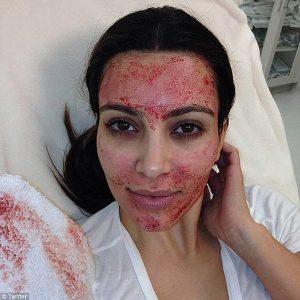Terapia Vampir - PRP