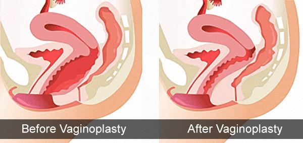 Rejuvenare Vaginală