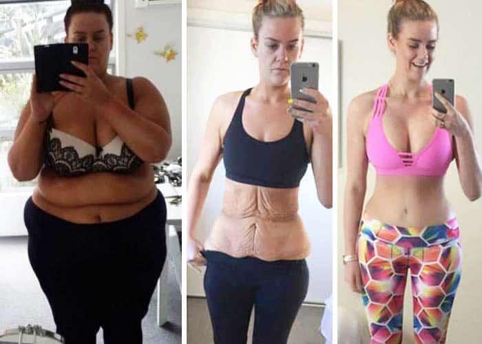 femeie care a slabit 90 kg si apoi a facut chirurgie post bariatrica