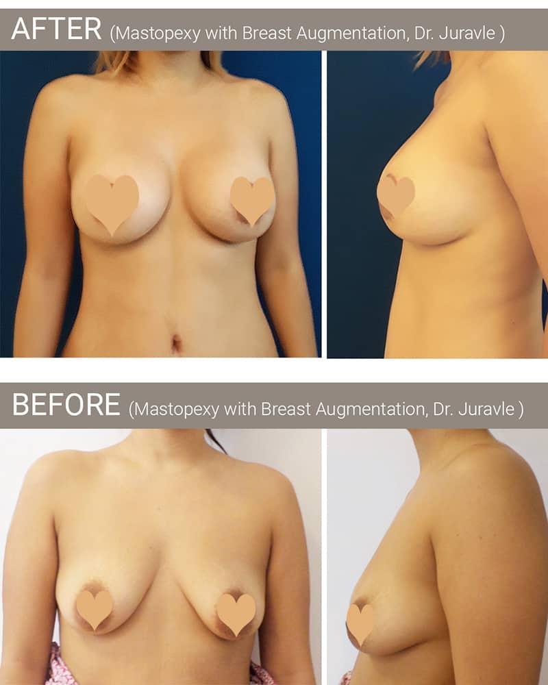 Inainte dupa operatia de ridicare sani / mastopexie cu implant mamar realizata de Dr. Florin Juravle, Bucuresti