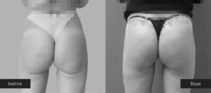 Operatie de Lifting, ridicare de fese, foto inainte / dupa