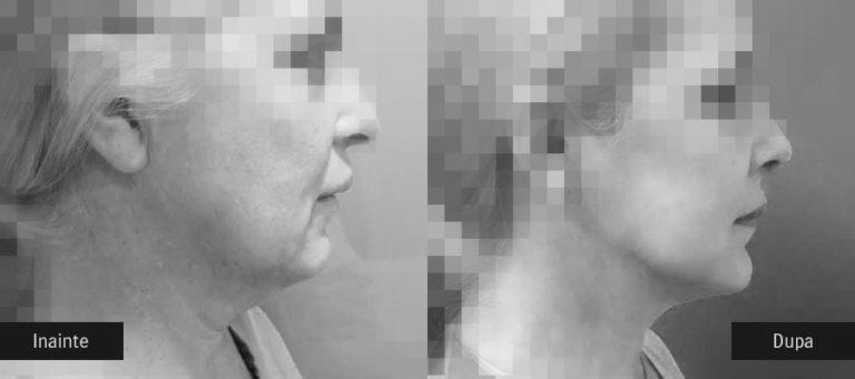 poze inainte dupa lifting facial chirurgical profil 01