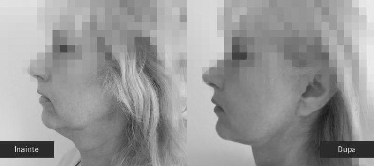 lifting facial profil inainte dupa -04