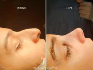 Rinoplastie femeie , inainte dupa operatie, dr. Juravle