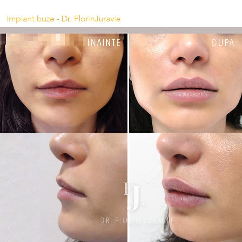 Marirea buzelor cu implant pentru buze, poze inainte si dupa