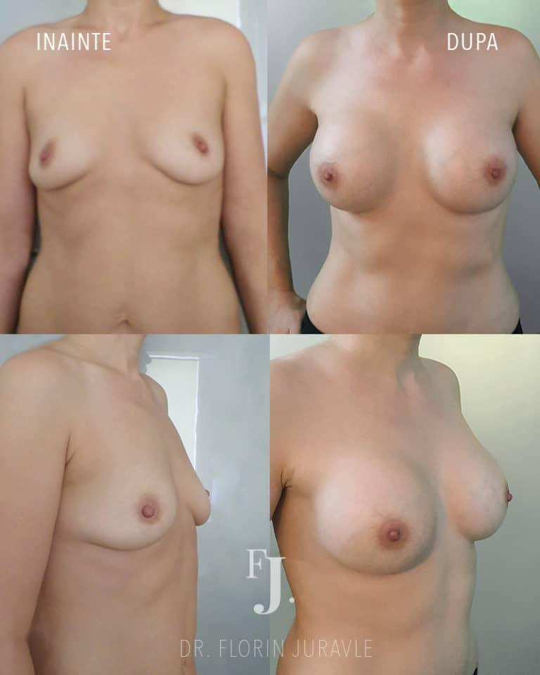 Caz 5: Implant mamar, poze inainte/ dupa