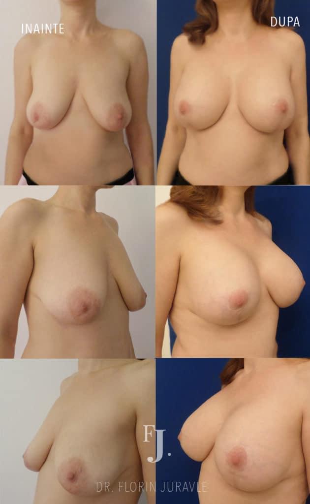 Mastopexie, ridicare sani sau lifting mamar cu implant, dr Florin juravle