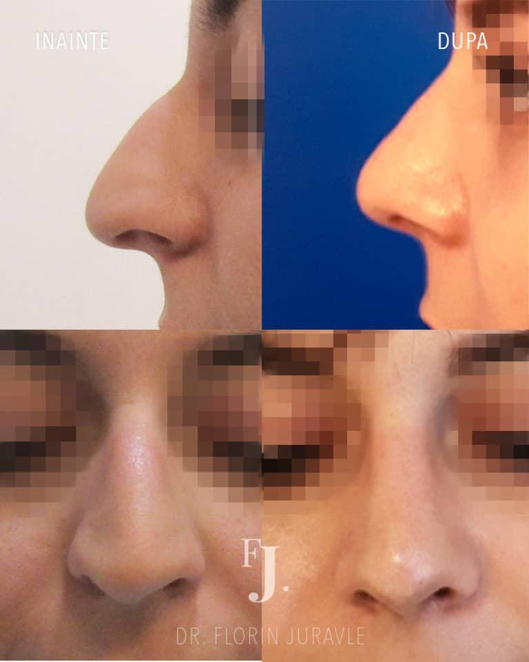 Operatie de rinoplastie, corectie nas coroiat la femeie, inainte si dupa