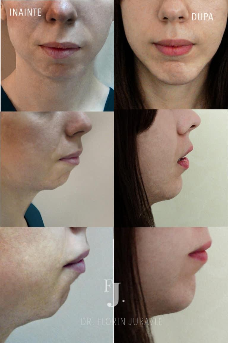 Implant de barbie (mentonier), femeie cu barbia tesita