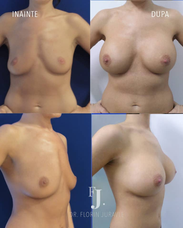 inainte dupa implant mamar sani cu aspect natural, dr juravle