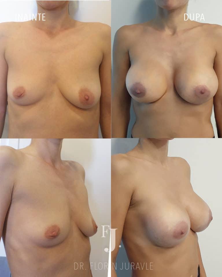 marire de cani cu implant mamar poze inainte si dupa , operatie chirurg estetician Bucuresti Dr. Juravle
