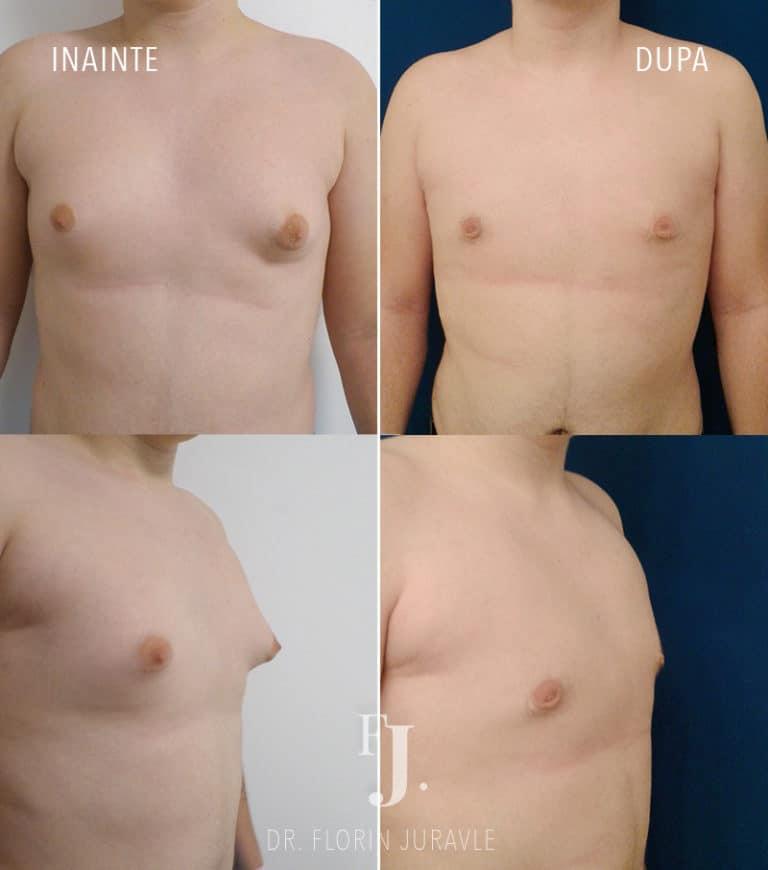 Poze inainte si dupa operatia de miscorare a sanilor la barbat, adica ginecomastie facuta de dr. Florin Juravle