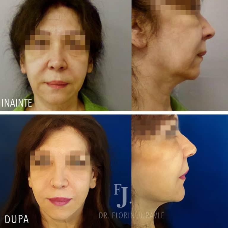 lifting facial, poze inainte si dupa, operatie dr Juravle, Bucuresti