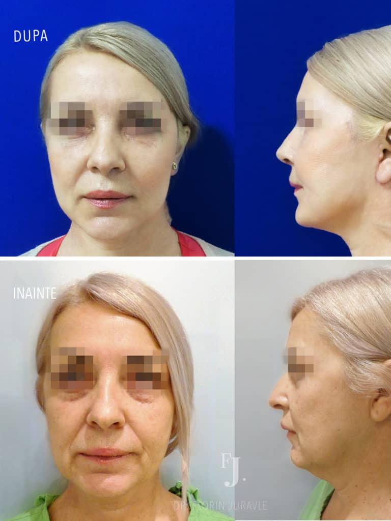 Poze inainte si dupa operatia de lifting facial, fata si profil, dr Florin Juravle