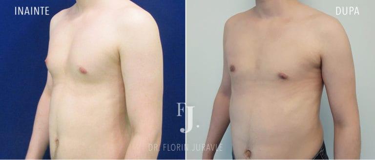 Ginecomastie, micsorarea sanilor la barbat poze inainte si dupa