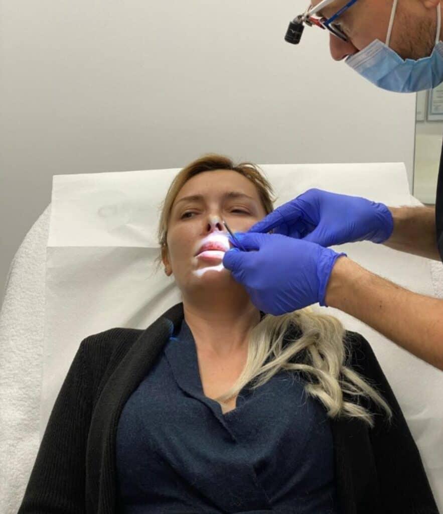 Dr Juravle realizeaza lifting de buza
