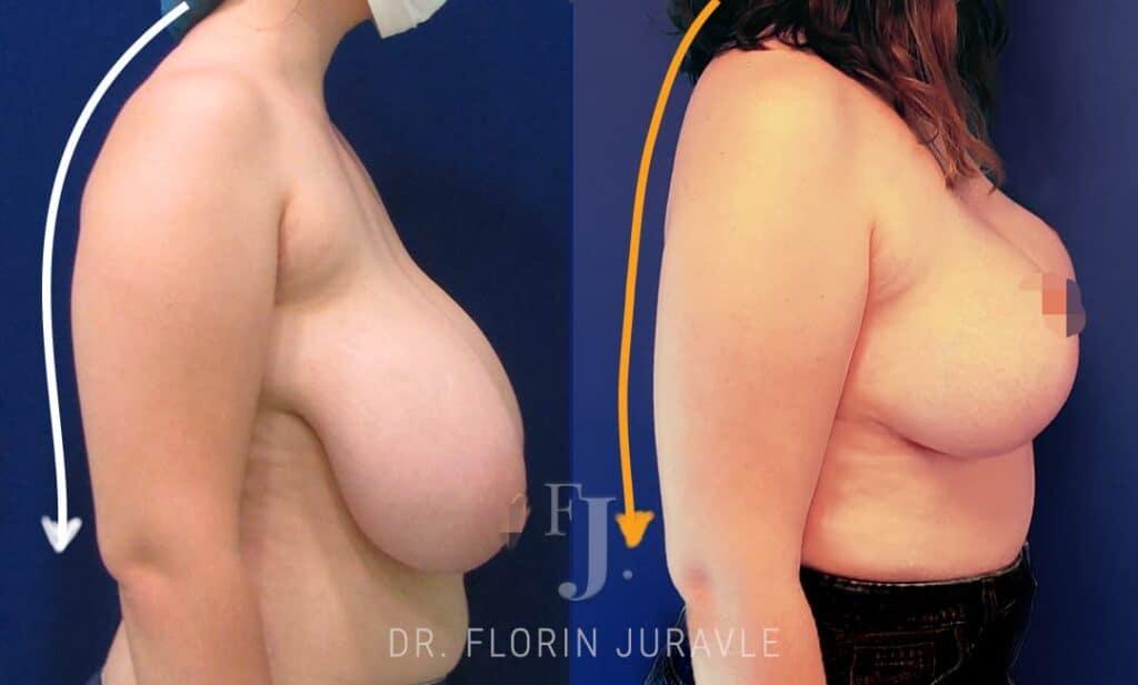 Corectia de coloana dupa operatia de reductie mamara realizata de dr Florin Juravle